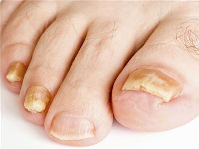 灰指甲的症状图片