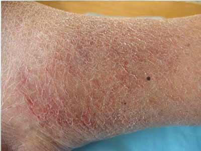 湿疹发病有哪些临床症状